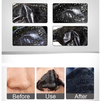 Dr-Rashel Gold & Black Peel-Off Mask 2 in 1 Remove Blackheds Pure Luxury Lift & Firm Mask 80ml x 2
